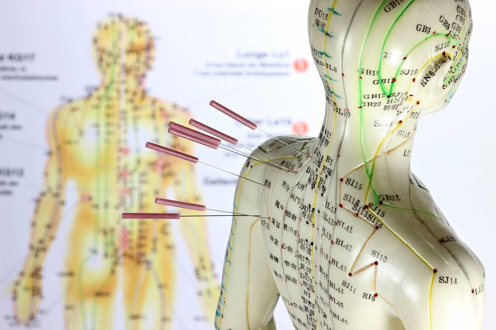 Acupuncture body example